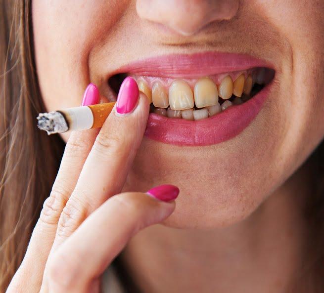 Fumatul poate cauza pierderea dinților, Foto: amfipolinews.blogspot.ro