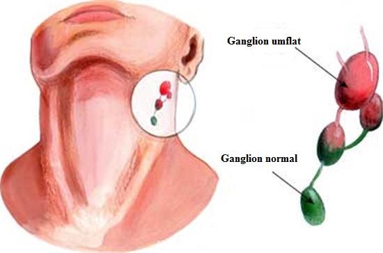 Ganglioni limfatici inflamați la gât, Foto: whitengreen.com