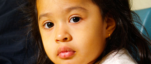 Hepatită virală la copii, Foto: med.nyu.ed