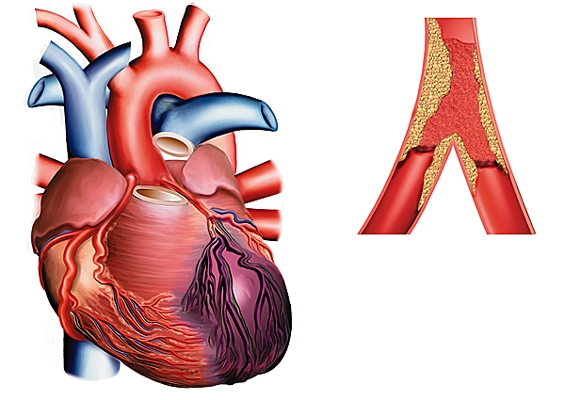 Infarctul miocardic, Foto: larousse.fr