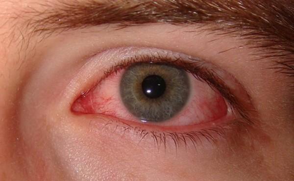 Infecția cu Chlamydia, Artrita reactivă, Foto: goodmorningcenter.com