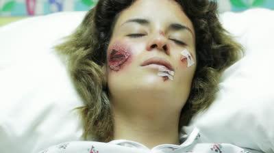 Leziuni faciale din cauza unui accident, Foto: stock-clip.com
