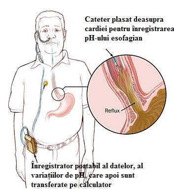 Metodă de depistare a bolii de reflux gastro-esofagian, pH-metria esofagiană, Foto: lookfordiagnosis.com