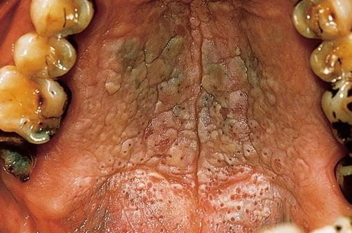 Nicotina afectează cavitatea bucală, mucoasele, dinții, Foto: es.klear.com