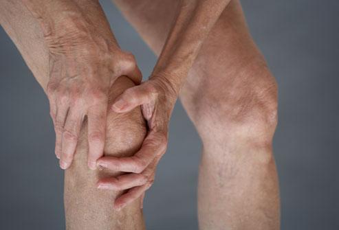 Osteoartrita, boala degenerativă a articulațiilor, Foto: erwinadr.blogspot.ro