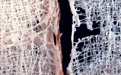 Osteoporoza, scăderea densității oaselor, Foto: gelenk-klinik.de