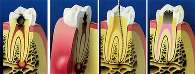 Parodontite, Foto: intranet.tdmu.edu.ua