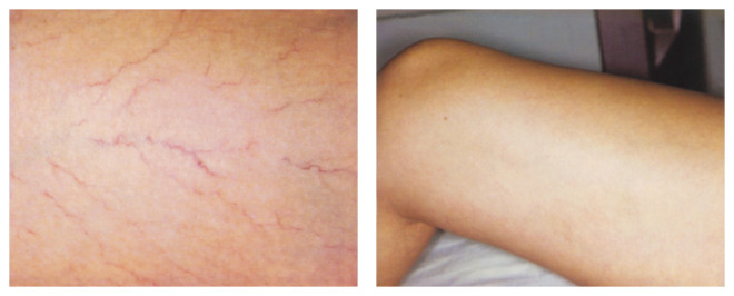 Procedură cu laserul GentleYAG ajută în tratamentul multor afecțiuni, Foto: irwinlasercenter.com