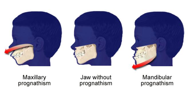 Prognatismul mandibular, Foto: balto-slavica.com