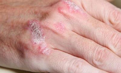 tratamentul artrozei mainilor cu Almag 01