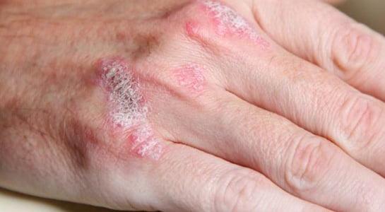 Psoriazis, simptomele bolii, Foto: sedefhastaligi.com