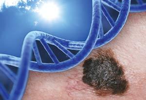 Radiațiile ultraviolete, un factor de risc al dezvoltării melanomului, Foto: skincancer.org