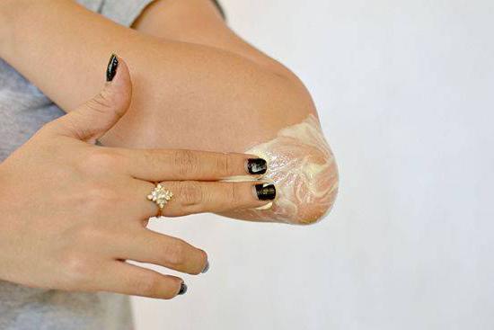 Remediu pentru pielea uscată a coatelor, Foto: fb.ru