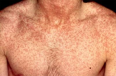 Rubeola, erupții de culoare roșie pe piele, Foto: domekaformadero.files.wordpress.com