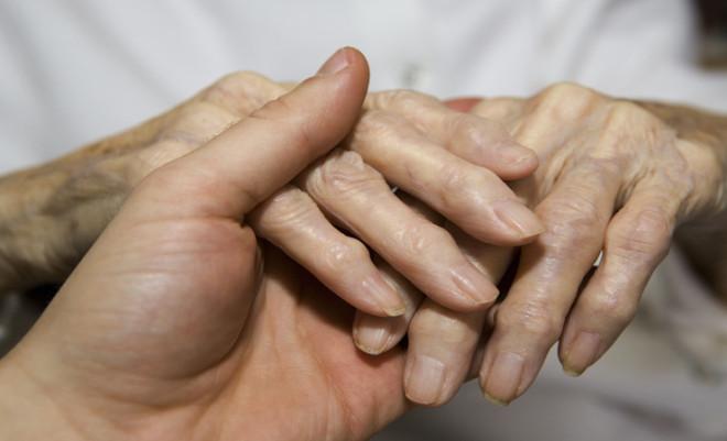 Sclerodermia sistemică, boală a țesutului conjunctiv, Foto: olwomen.com