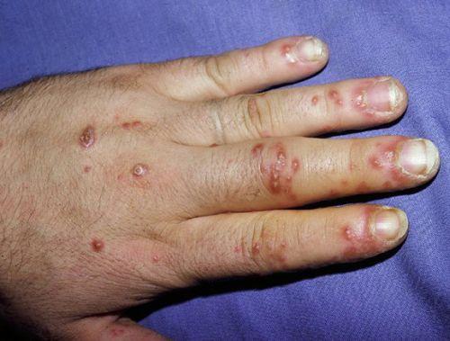 Simptome ale artritei reactive cauzate de infecții în organism, Foto: medicinalive.com