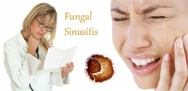 Sinuzită fungică, Foto: fungalsinusitis.org