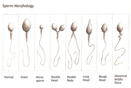 Spermatograma, morfologia spermatozoizilor, Foto: rdchef.files.wordpress.com