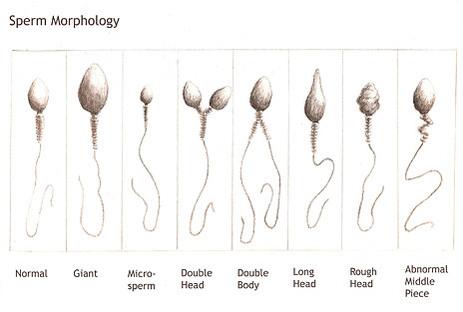 Spermatograma, morfologia spermatozoizilor, Foto: rdchef.files.wordpress.com