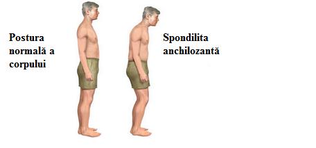 Spondilita anchilozantă, Foto: physioworks.com.au