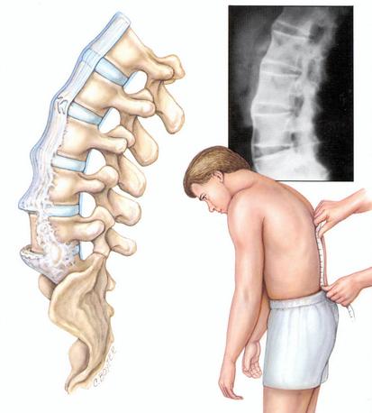 Spondilita anchilozantă, afecțiune a coloanei vertebrale, Foto: galleryhip.com