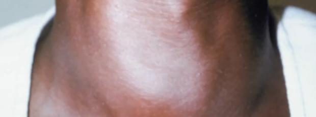 Tiroidita autoimună