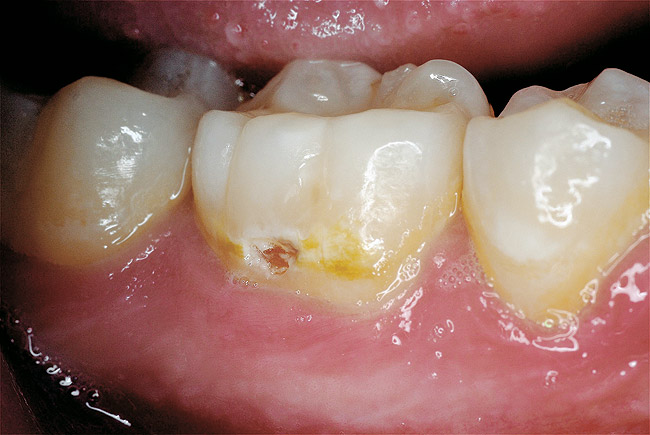 Tulburări de calcifiere ale dinților (la molari), Foto: dentalaegis.com
