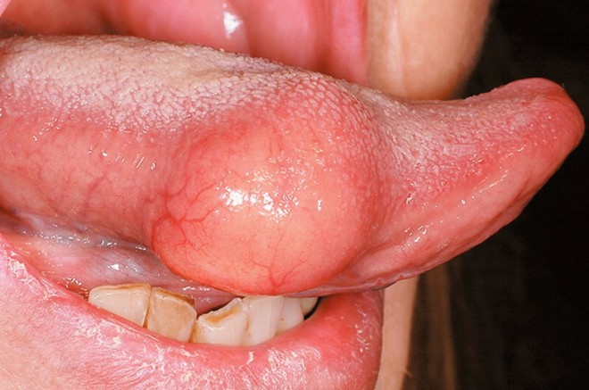 Umflarea limbii din cauza infecției fungice, Foto: medicalpoint.org