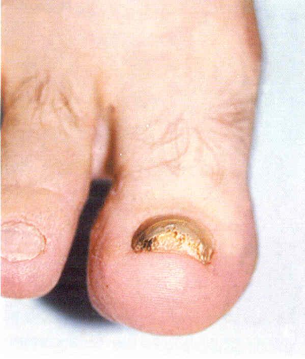 Îngroșarea unghiei produce hiperkeratoza patului unghiei, Foto: studfiles.ru