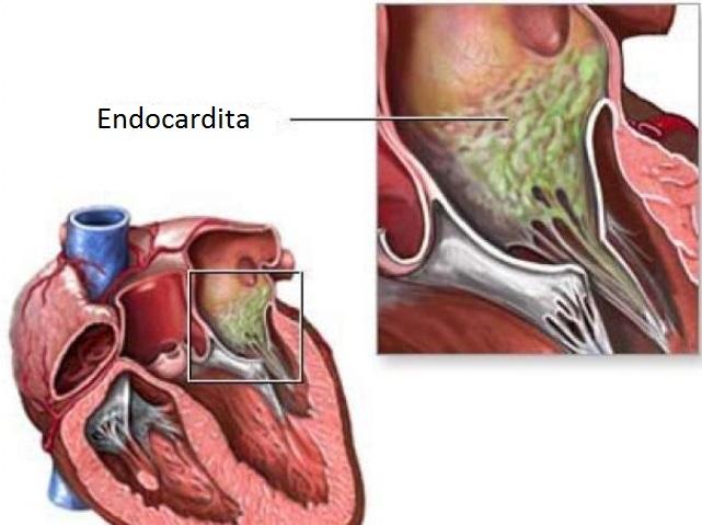 Endocardita infecțioasă, Foto: slideshare.net