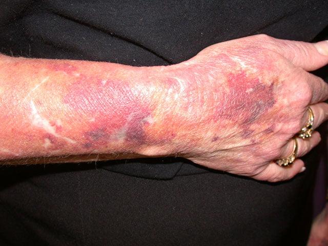 Purpura senilă, Foto: health.auckland.ac.nz