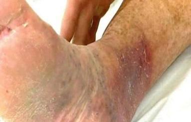 Ulcer de gambă la bătrâni, Foto: channel4embarrassingillnesses.com