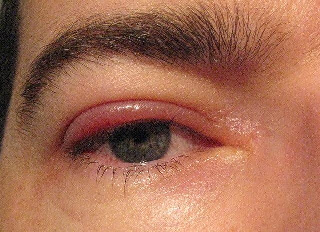 Urciorul, Foto: indohealthy.com