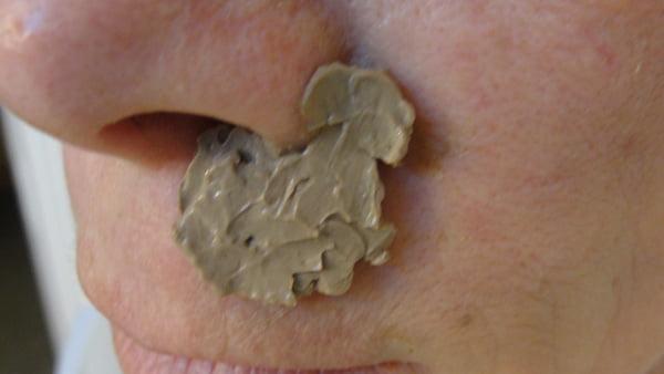 Cataplasmă cu argilă pentru tratamentul escarei la nas, Foto: eytonsearth.org
