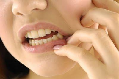 Durerea de dinți, Foto: acces-sante.net