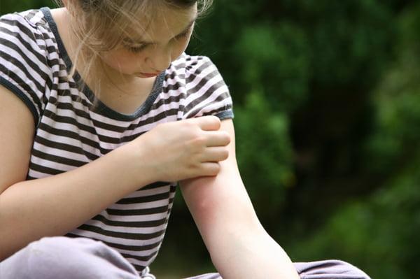Înțepătura de țânțar, simptome, Foto: sheknows.com