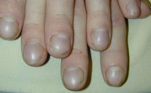 Accentuarea curburii lamei unghiale