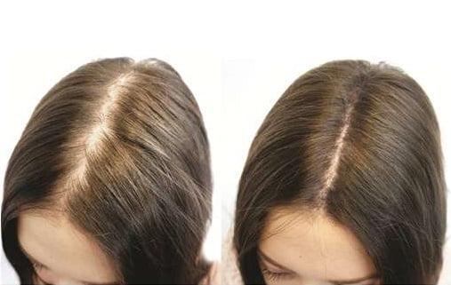 Alopecia androgenică la femei, Foto: biotinhairgrowthlalet.blogspot.com