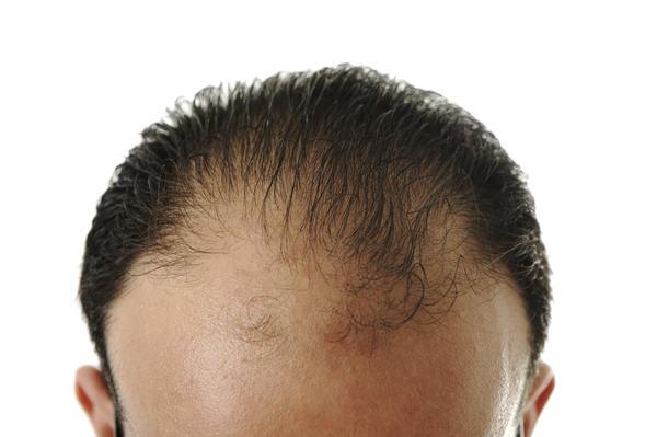 Alopecia androgenică, Foto: sharepractice.com