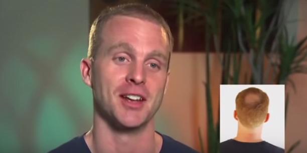 Alopecia areată la bărbați, chelia în creștetul capului