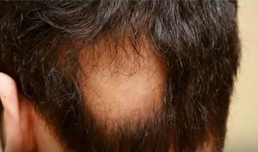 Alopecia areată sau pierderea părului