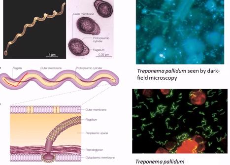 BacteriaTreponema pallidum