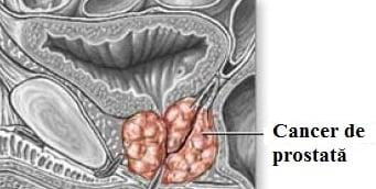 Cancer de prostată, Foto: imgarcade.com