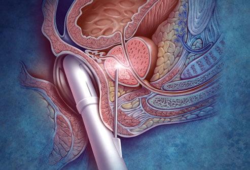 Cancerul de prostată, Foto: 2eyeswatching.com