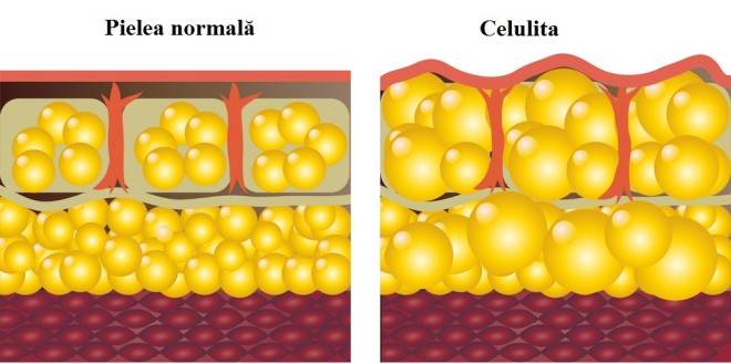 Celulita, aspectul pielii, Foto: letstalkcellulite.com