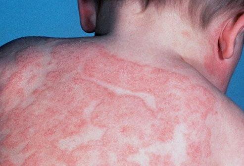 Dermatita atopică, Foto: protiv-acne.ru
