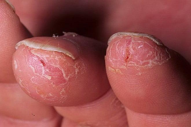 Eczemă uscată, Foto: liveinternet.ru