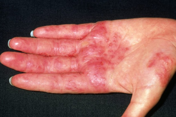 Eczema de contact alergică, Foto: goodtoknow.co.uk