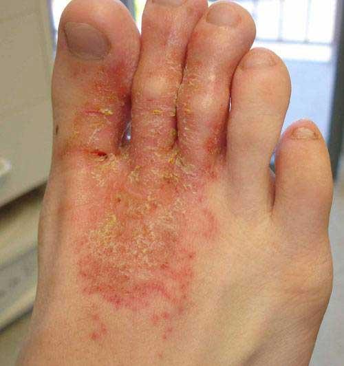 Eczema microbiană, Foto: pro-simptomy-lechenie.ru