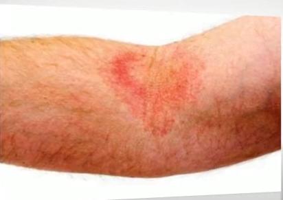 Eczema varicoasă